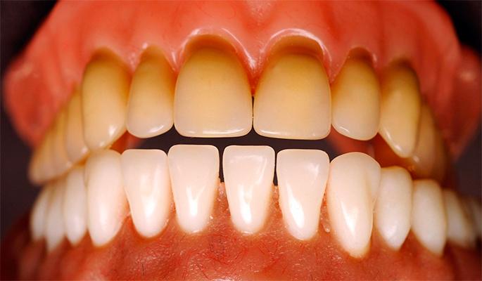 Потемнение эмали зубов от чего